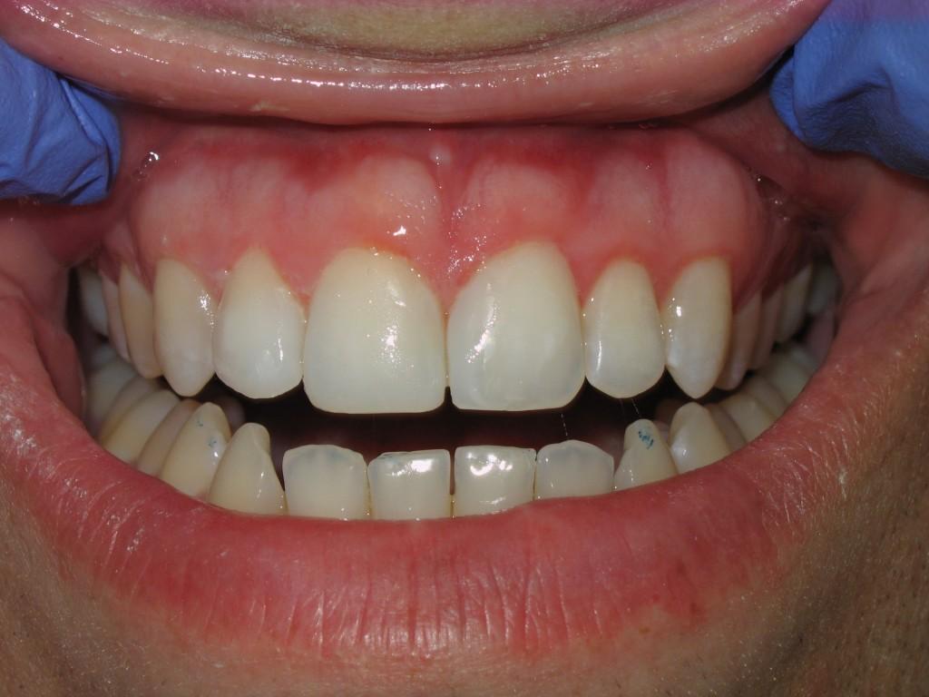 C-closed-diastema