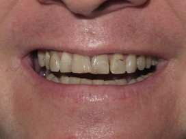E-before-veneers