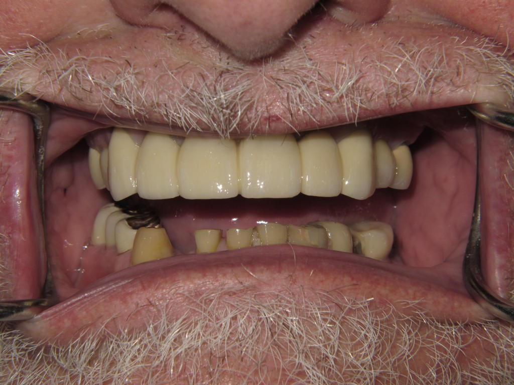 H-after-crowns--(2)