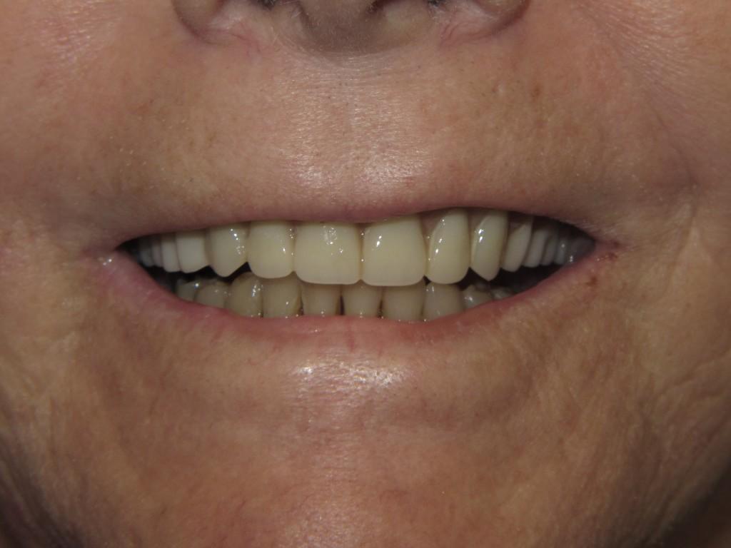 I-after-denture