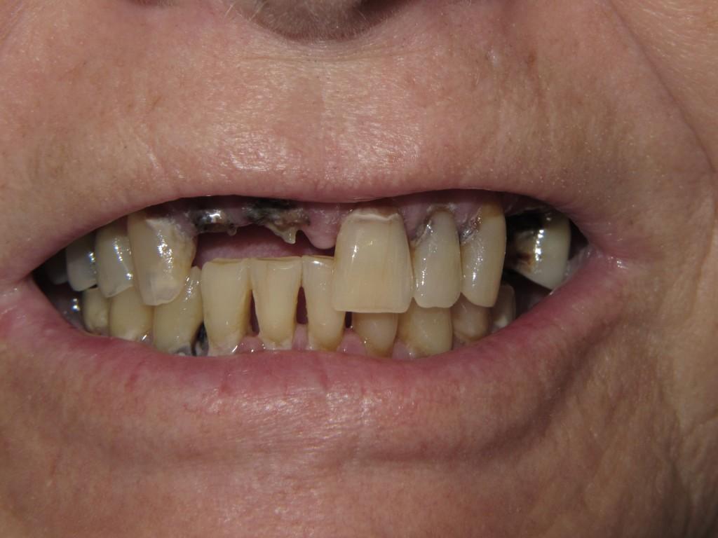 I-before-denture