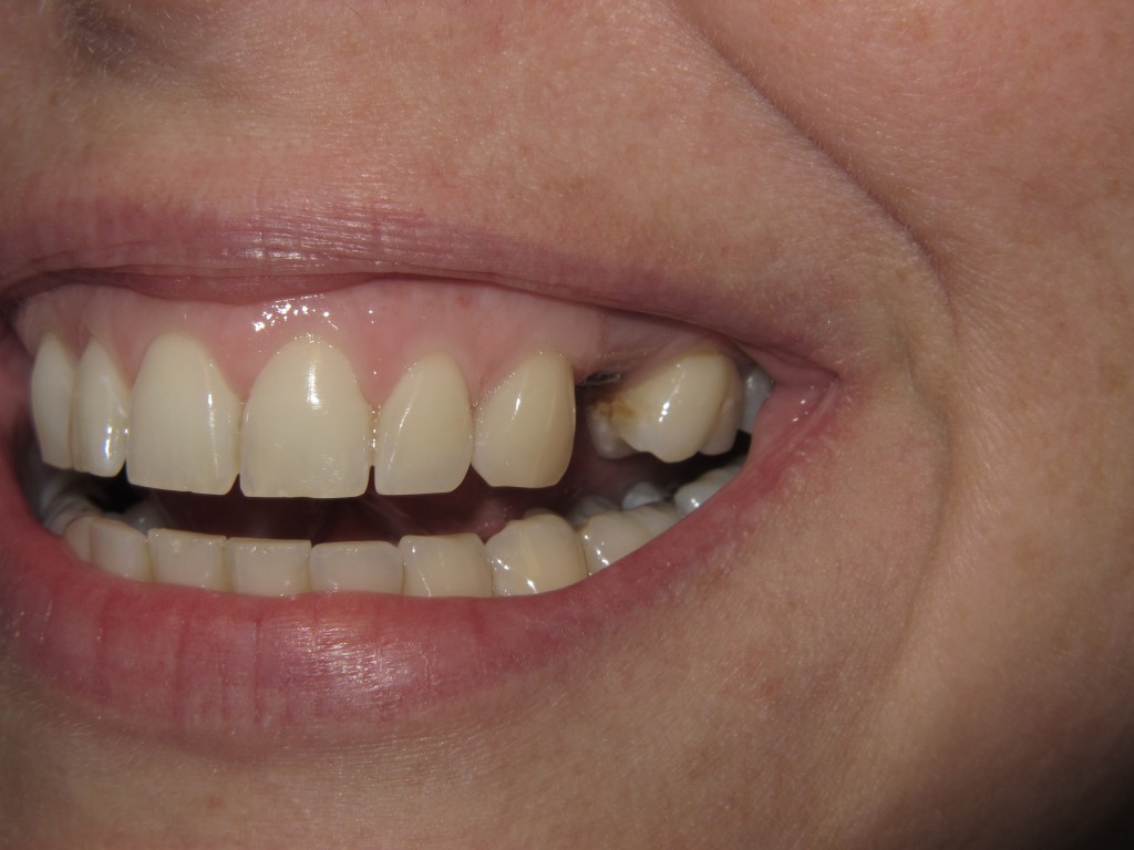 K-before-implant